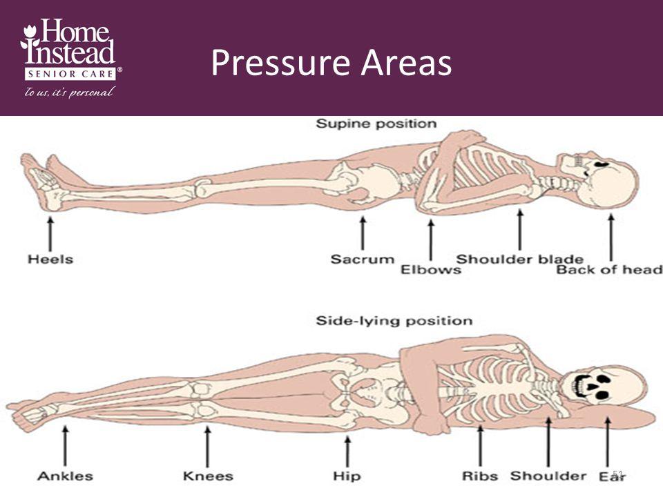 Pressure Areas 51