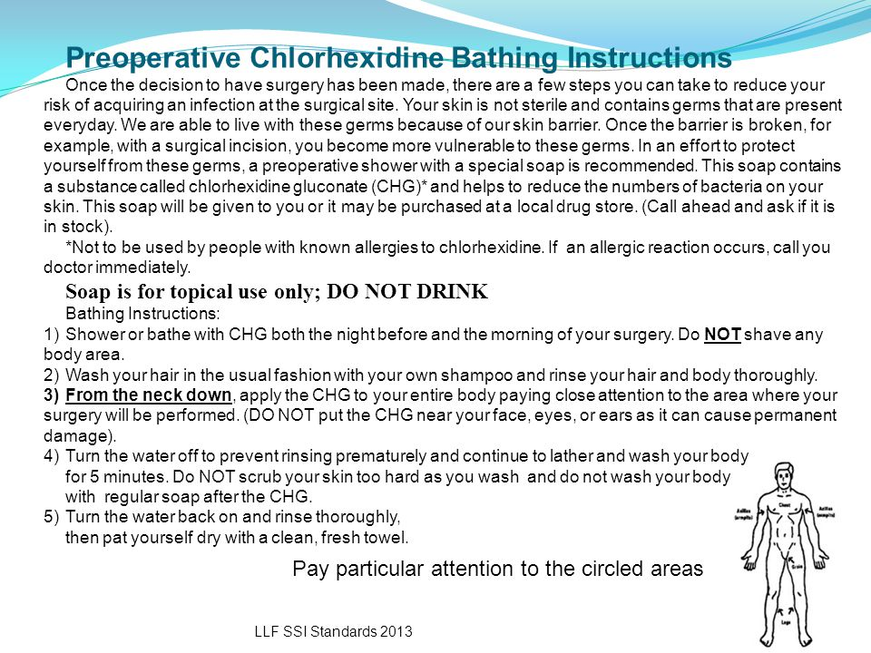 LLF SSI Standards 2013 Preoperative Chlorhexidine Bathing Instructions Once the decision to have surgery has been made, there are a few steps you can