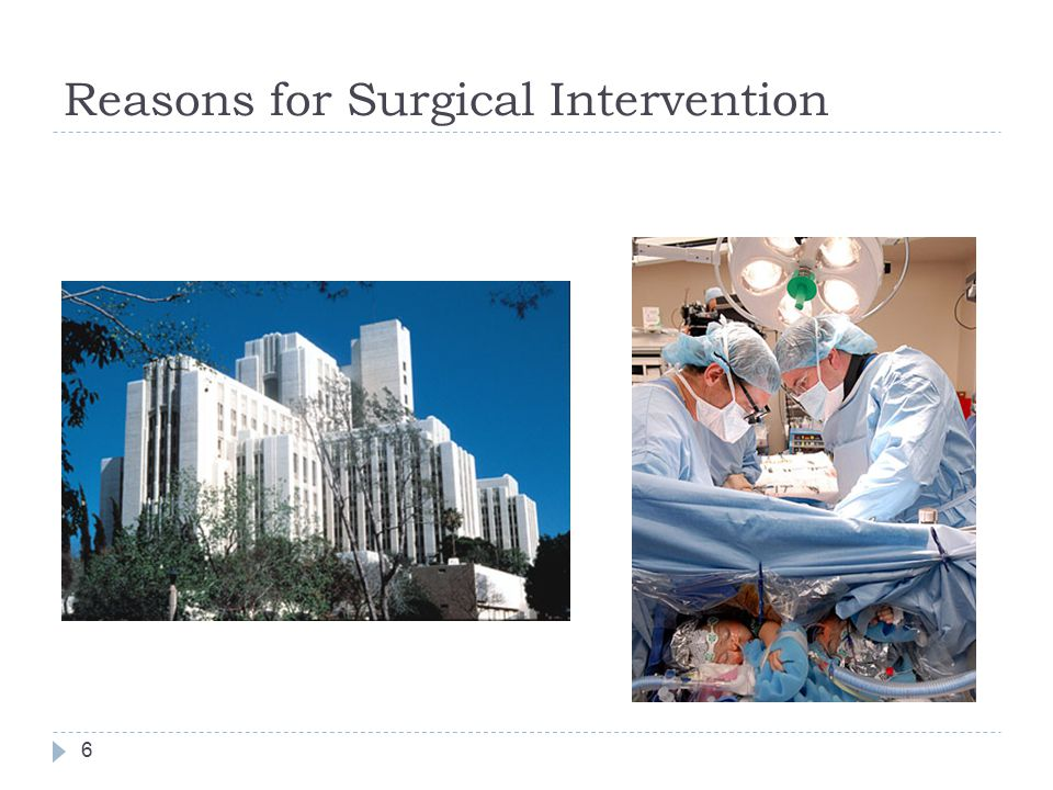 Preoperative Case Management  Prepare the OR  Assemble necessary supplies  Don PPE  Prepare and maintain the sterile field  Scrub, gown, and glove  Organize supplies and equipment  Count  Drape