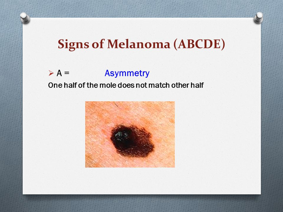 Signs of Melanoma (ABCDE)  A = Asymmetry One half of the mole does not match other half