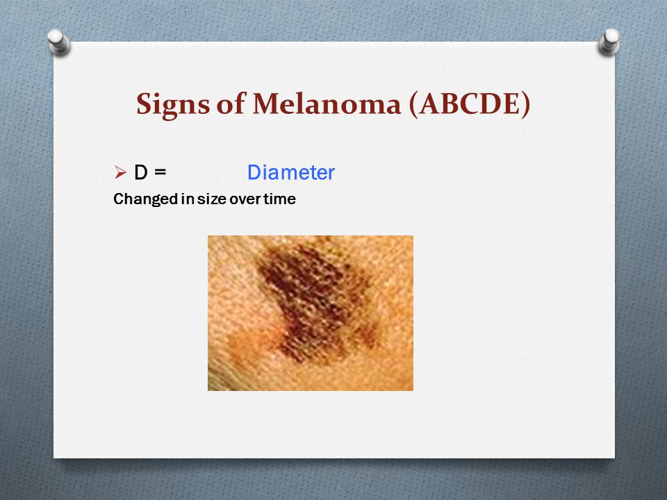 Signs of Melanoma (ABCDE)  D = Diameter Changed in size over time