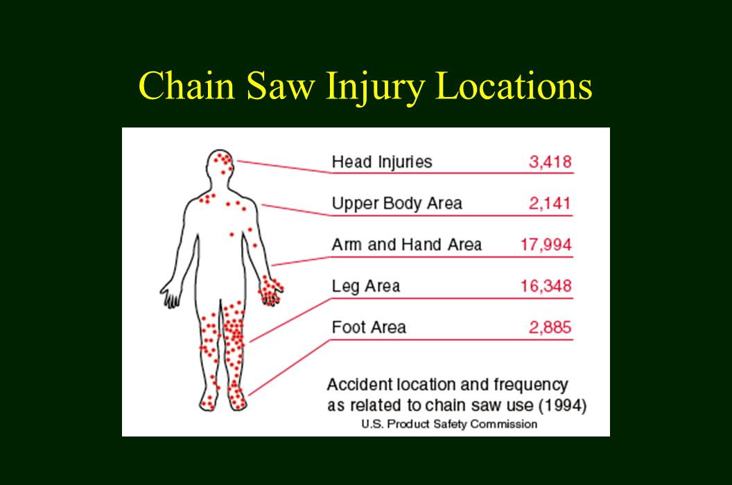 Chain Saw Injury Locations