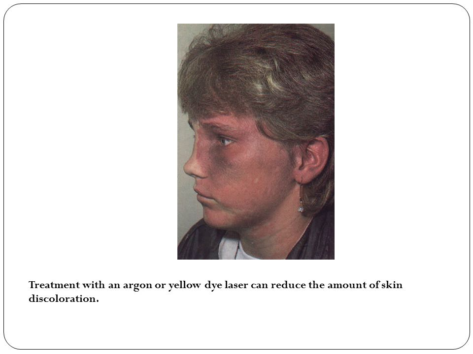 Treatment with an argon or yellow dye laser can reduce the amount of skin discoloration.
