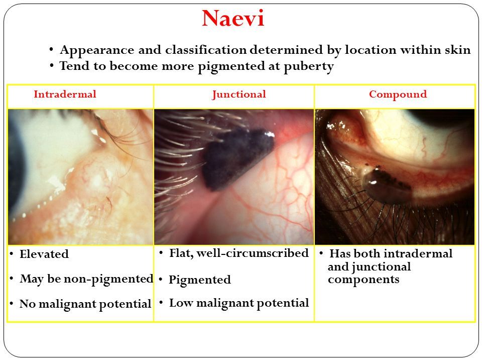Naevi Appearance and classification determined by location within skin Tend to become more pigmented at puberty Elevated Intradermal May be non-pigmen