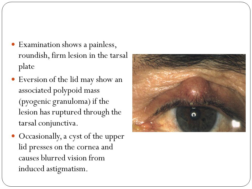 Keratoacanthoma Presentation is typically in adult life with a fast-growing skin lesion.
