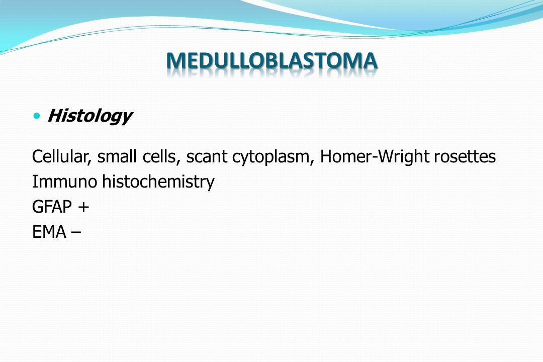 Histology Cellular, small cells, scant cytoplasm, Homer-Wright rosettes Immuno histochemistry GFAP + EMA –
