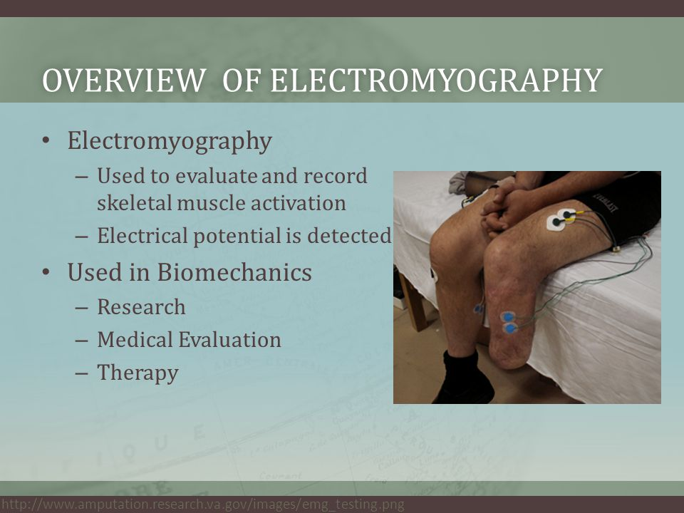 OVERVIEW OF ELECTROMYOGRAPHYOVERVIEW OF ELECTROMYOGRAPHY Electromyography – Used to evaluate and record skeletal muscle activation – Electrical potential is detected Used in Biomechanics – Research – Medical Evaluation – Therapy http://www.amputation.research.va.gov/images/emg_testing.png