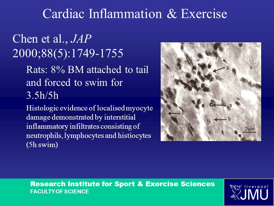 Research Institute for Sport & Exercise Sciences FACULTY OF SCIENCE Cardiac Inflammation & Exercise Chen et al., JAP 2000;88(5):1749-1755 Rats: 8% BM