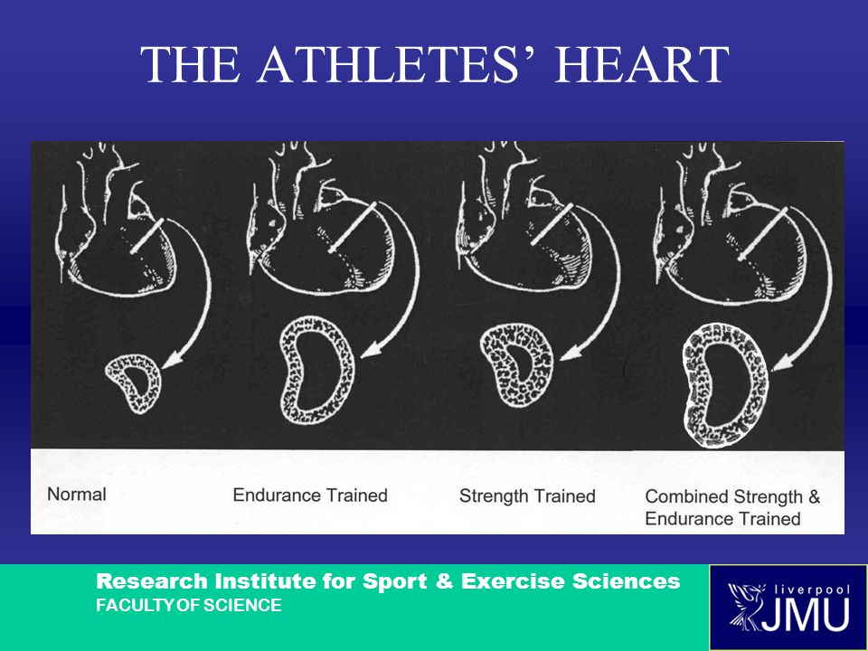 Research Institute for Sport & Exercise Sciences FACULTY OF SCIENCE THE ATHLETES' HEART