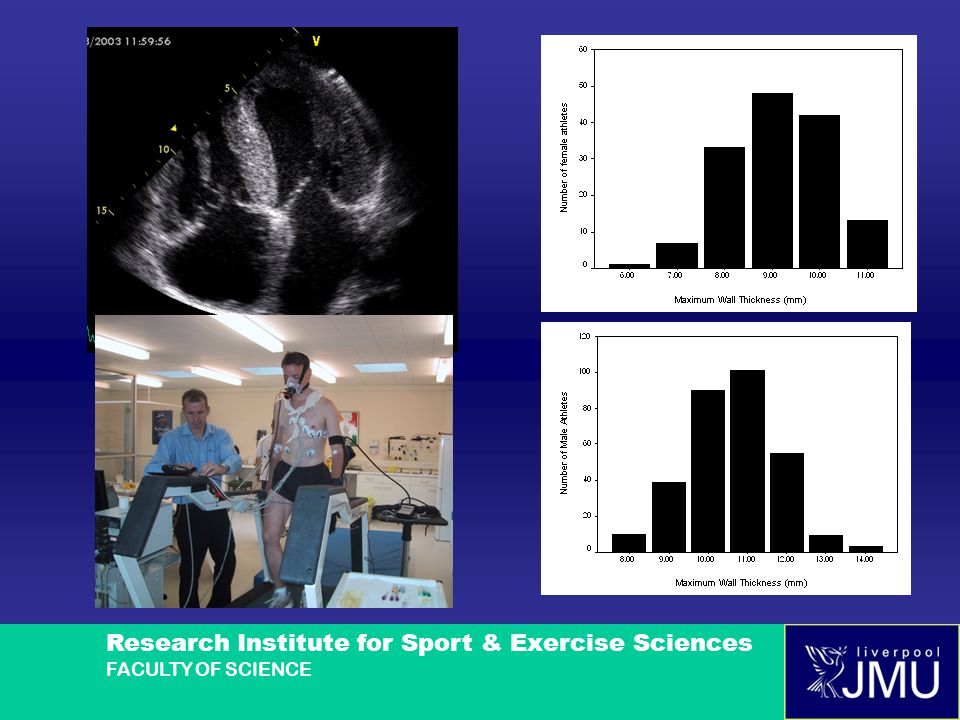 Research Institute for Sport & Exercise Sciences FACULTY OF SCIENCE Myocardial Fibrosis in a Lifelong Endurance Runner (RH): 2C & 4C LGE images