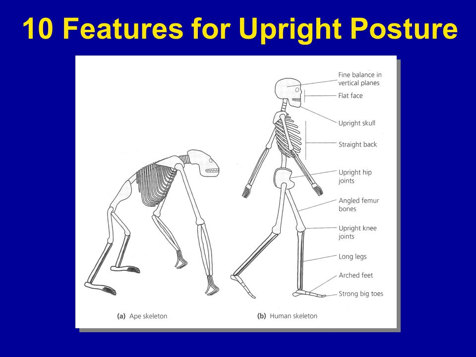 10 Features for Upright Posture