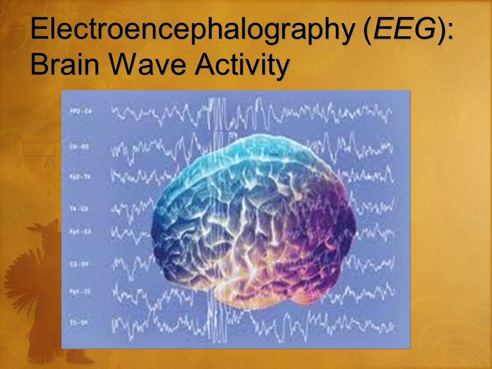 Electroencephalography (EEG): Brain Wave Activity