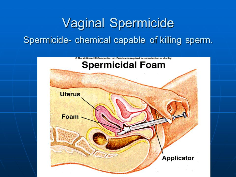 © 2007 McGraw-Hill Higher Education. All rights reserved. Vaginal Spermicide Spermicide- chemical capable of killing sperm.
