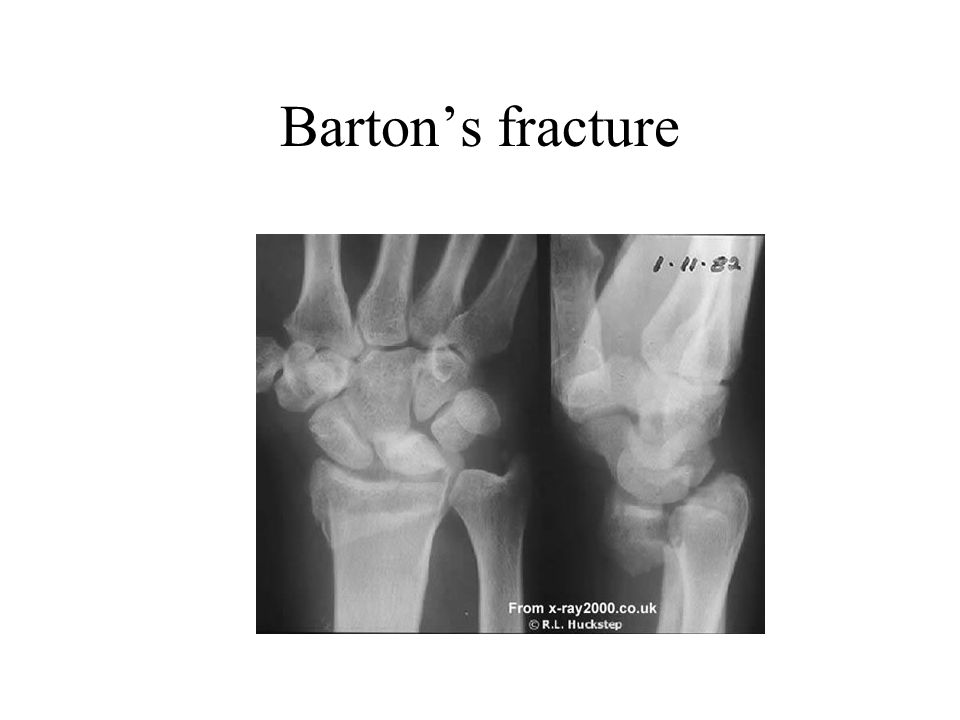 Barton's fracture