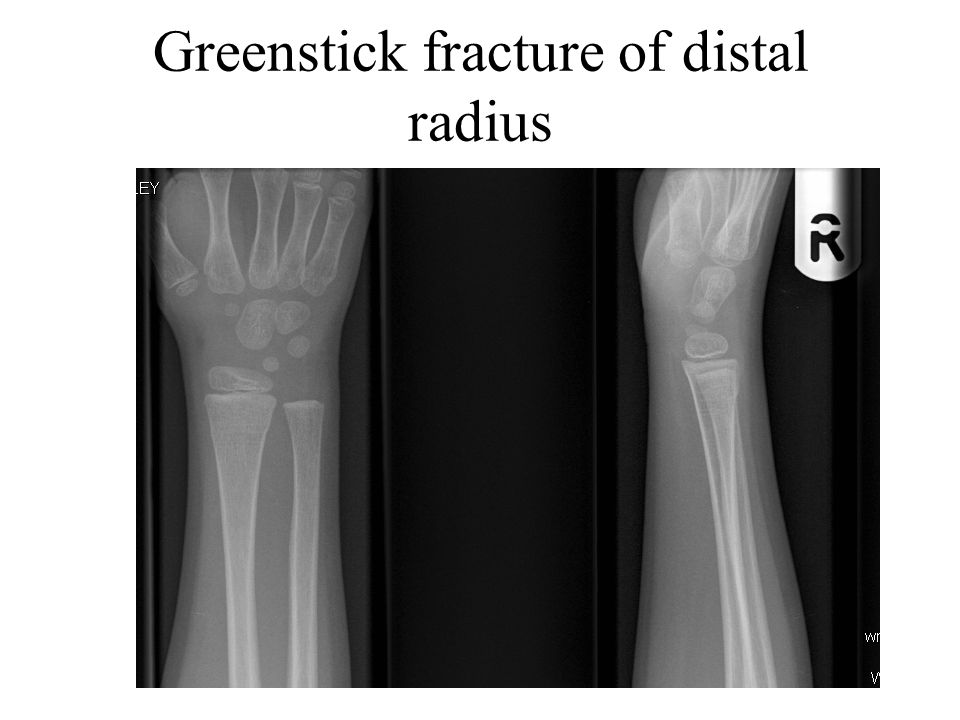 Greenstick fracture of distal radius