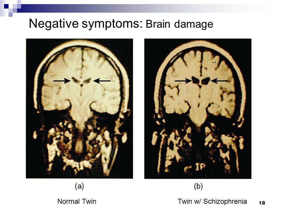18 Normal Twin Twin w/ Schizophrenia Negative symptoms: Brain damage