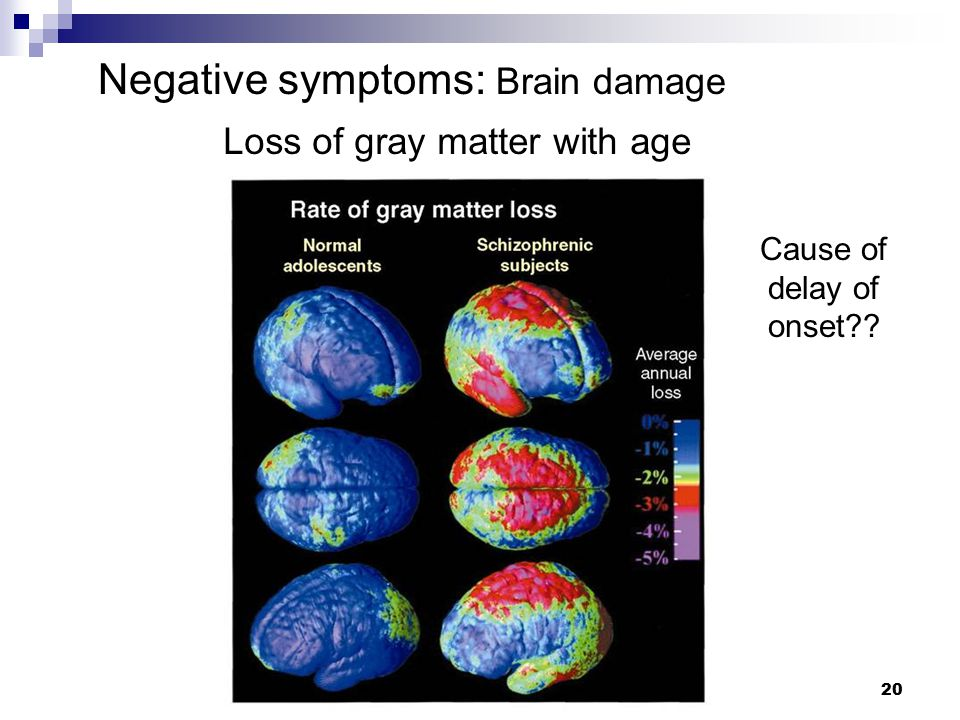 20 Loss of gray matter with age Cause of delay of onset?? Negative symptoms: Brain damage
