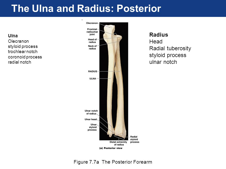 Figure 7.7a The Posterior Forearm The Ulna and Radius: Posterior Ulna Olecranon styloid process trochlear notch coronoid process radial notch Radius H