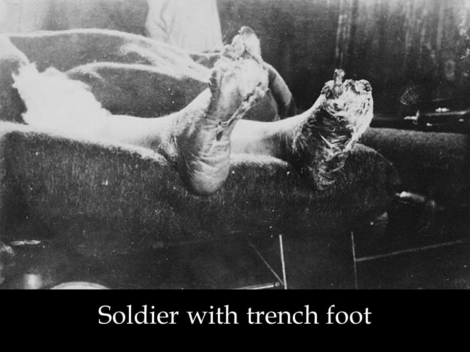 Soldier with trench foot