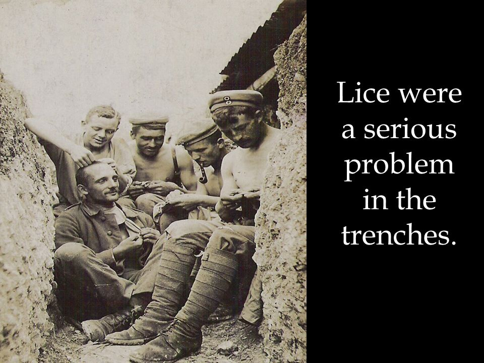 Lice were a serious problem in the trenches.
