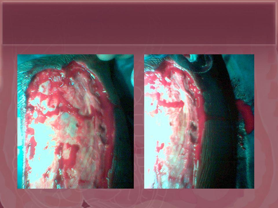 GG Kihiczak, RA Schwartz,* R Kapila Dermatology, New Jersey Medical School, Newark, New Jersey JEAVD 2006, 365-369 European Academy of Dermatology & Venerology