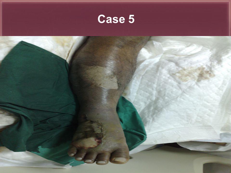 Al-Noor Practice Hajj 1426-1427 Total skin infections: 65 patient Necrotizing fasciitis : 38 Pt Others: 27 Pt