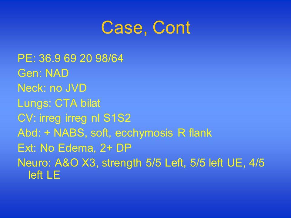Case, Cont PE: 36.9 69 20 98/64 Gen: NAD Neck: no JVD Lungs: CTA bilat CV: irreg irreg nl S1S2 Abd: + NABS, soft, ecchymosis R flank Ext: No Edema, 2+ DP Neuro: A&O X3, strength 5/5 Left, 5/5 left UE, 4/5 left LE