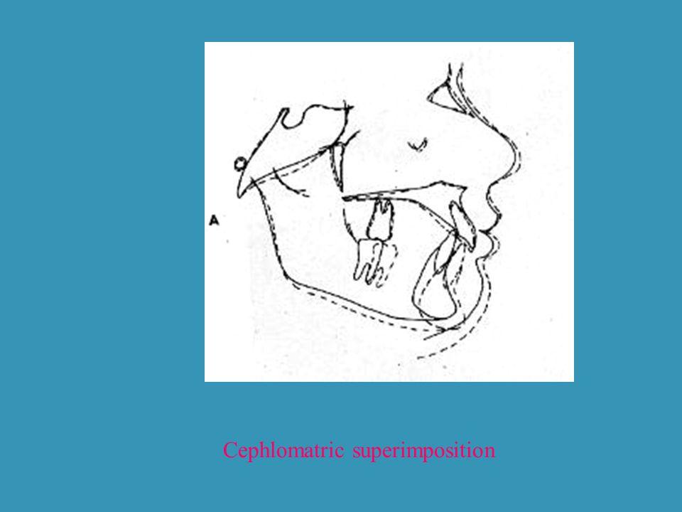 Cephlomatric superimposition