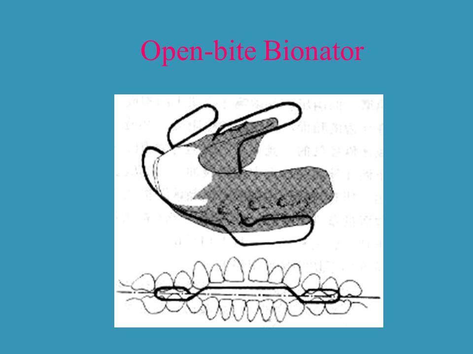 Open-bite Bionator