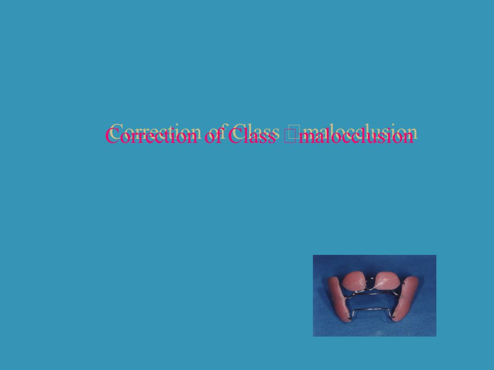 Correction of Class Ⅱ malocclusion