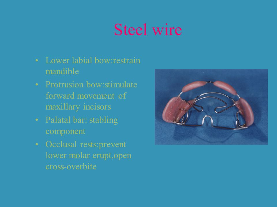 Steel wire Lower labial bow:restrain mandible Protrusion bow:stimulate forward movement of maxillary incisors Palatal bar: stabling component Occlusal rests:prevent lower molar erupt,open cross-overbite