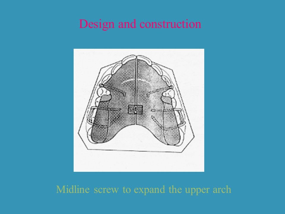Design and construction Midline screw to expand the upper arch