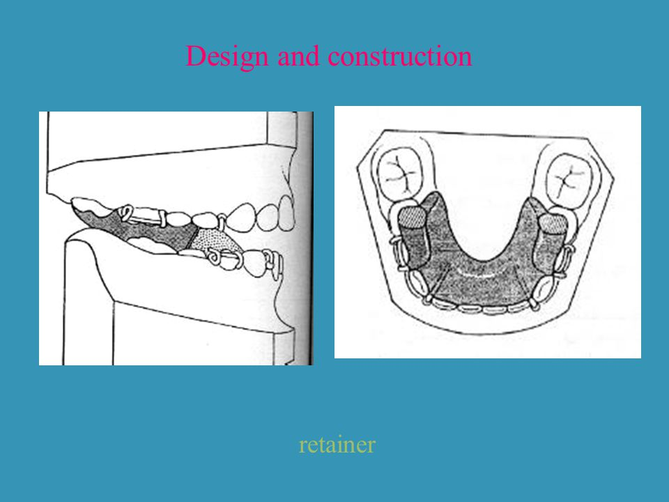 Design and construction retainer