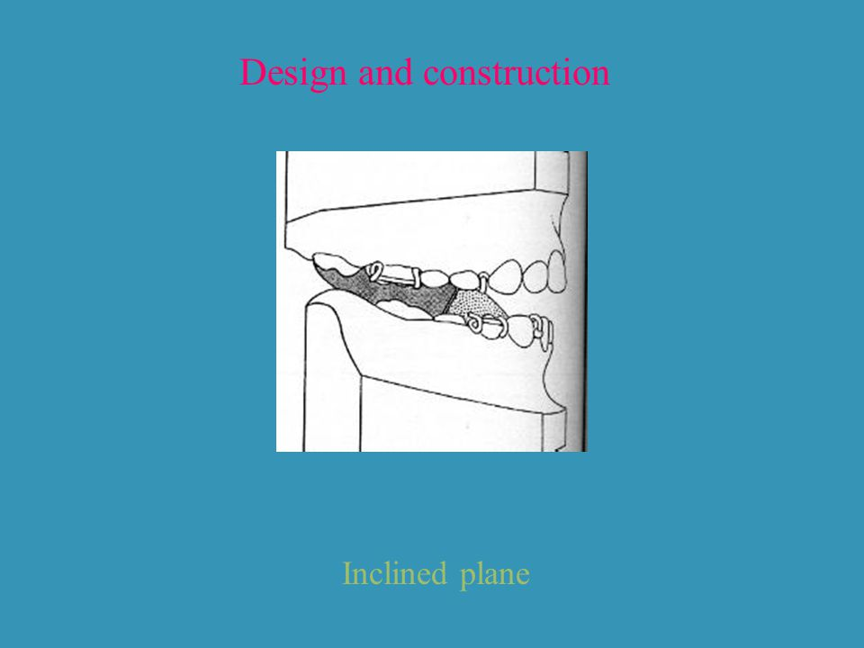 Design and construction Inclined plane
