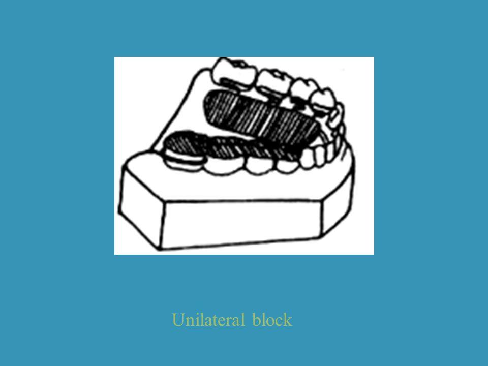 Unilateral block