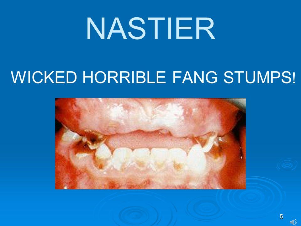 5 NASTIER WICKED HORRIBLE FANG STUMPS !