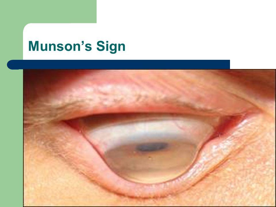 Munson's Sign