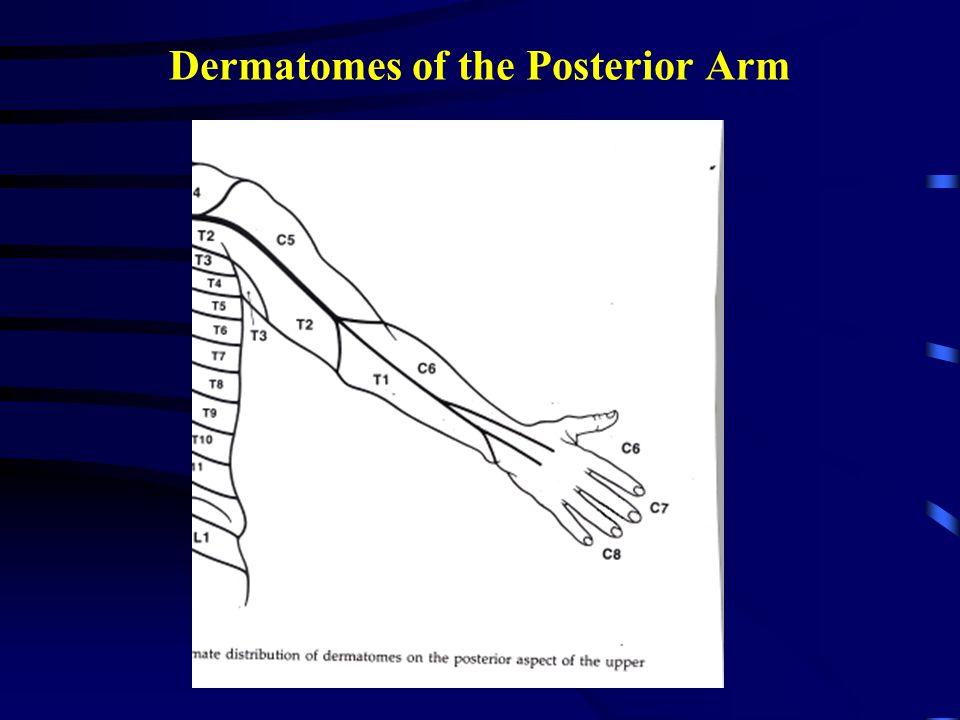 Dermatomes of the Anterior Arm
