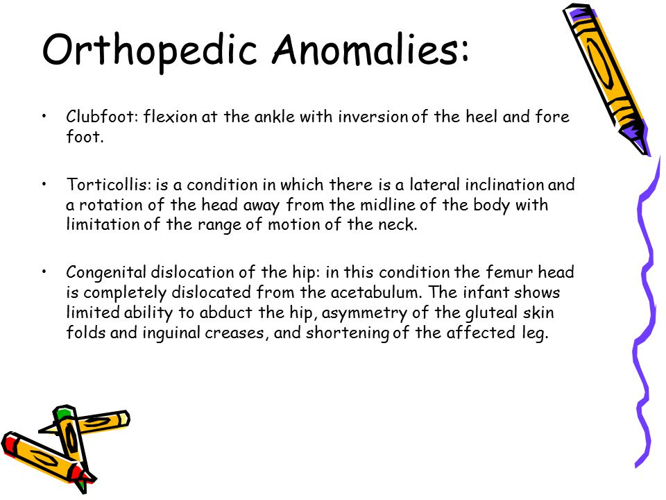 Orthopedic Anomalies: Clubfoot: flexion at the ankle with inversion of the heel and fore foot. Torticollis: is a condition in which there is a lateral