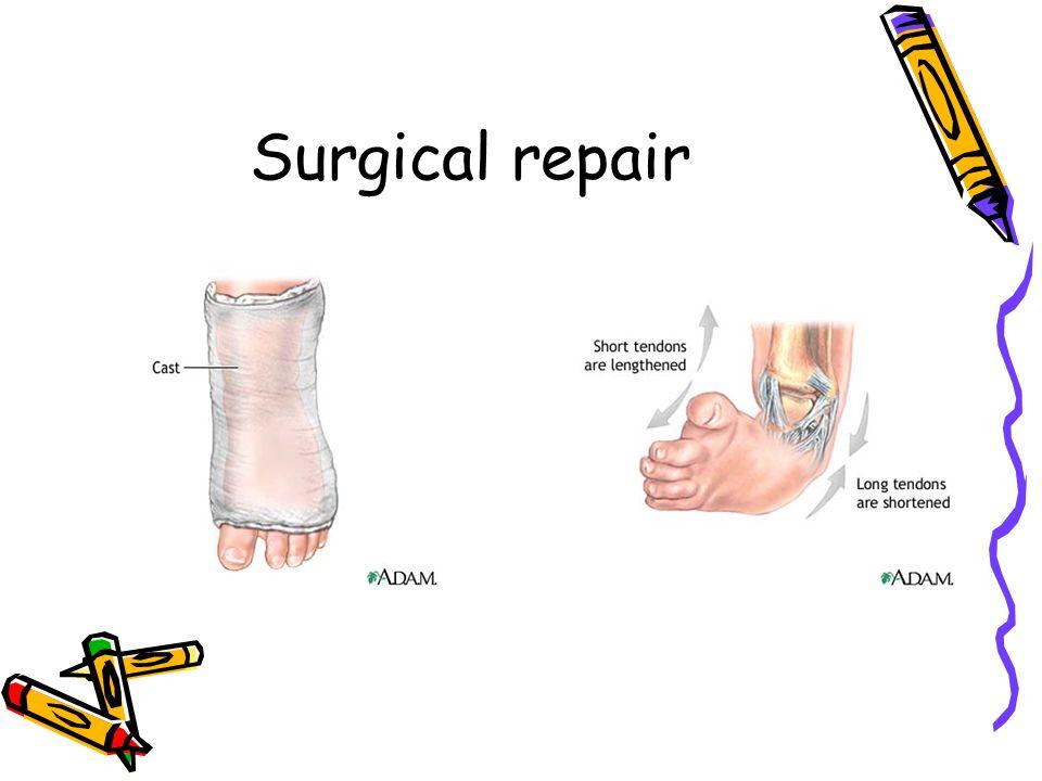 Surgical repair