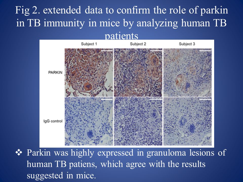 Fig 2. extended data to confirm the role of parkin in TB immunity in mice by analyzing human TB patients  Parkin was highly expressed in granuloma le