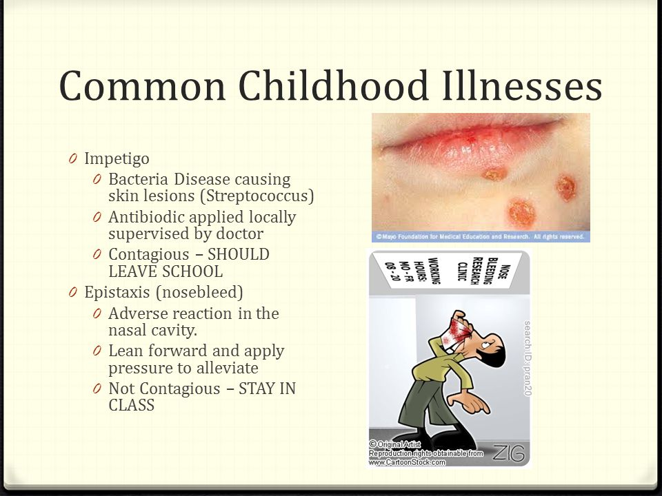 Common Childhood Illnesses 0 Impetigo 0 Bacteria Disease causing skin lesions (Streptococcus) 0 Antibiodic applied locally supervised by doctor 0 Contagious – SHOULD LEAVE SCHOOL 0 Epistaxis (nosebleed) 0 Adverse reaction in the nasal cavity.