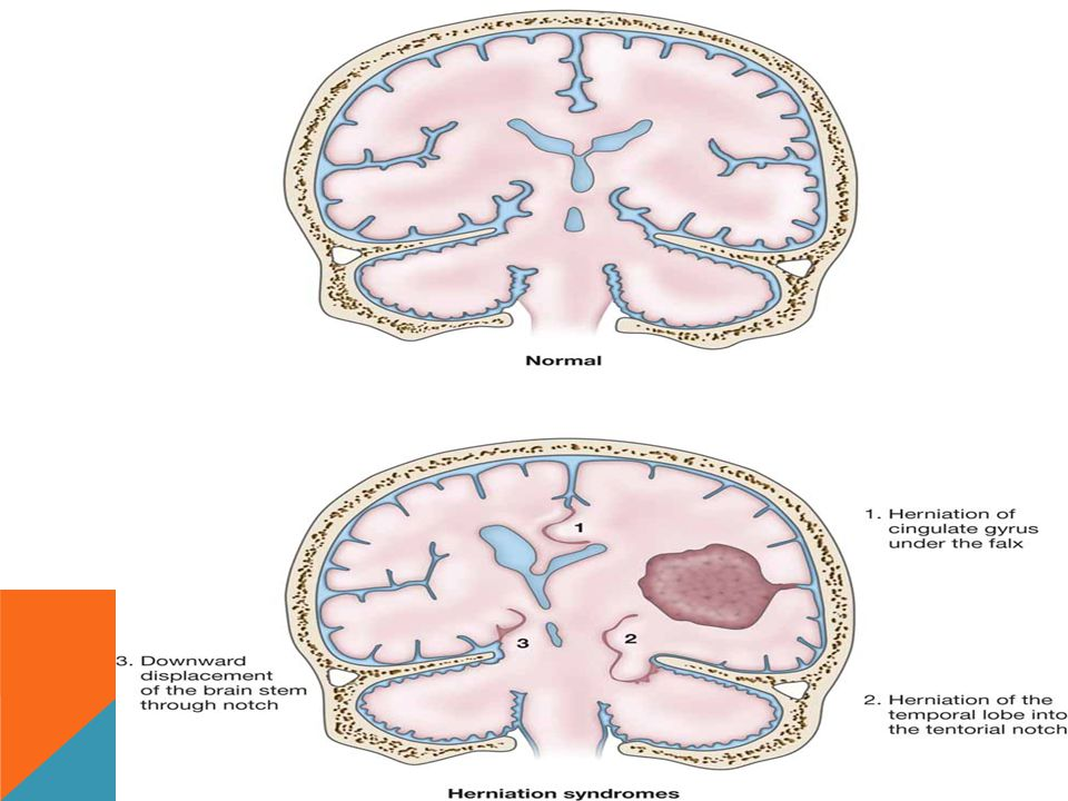 HERNIATION SYNDROMES. HERNIATION SYNDROMES.