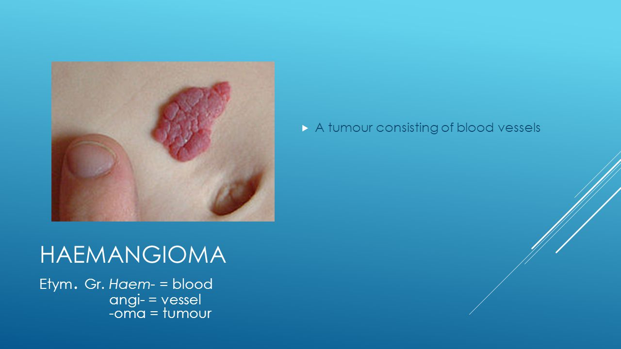 HAEMANGIOMA  A tumour consisting of blood vessels Etym. Gr. Haem- = blood angi- = vessel -oma = tumour