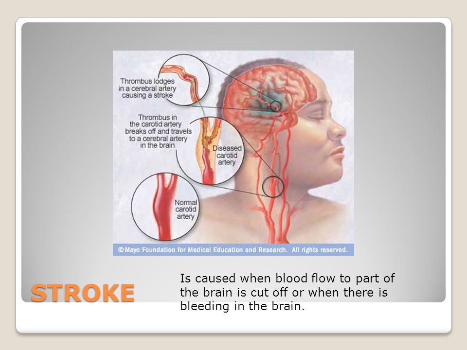 STROKE Is caused when blood flow to part of the brain is cut off or when there is bleeding in the brain.