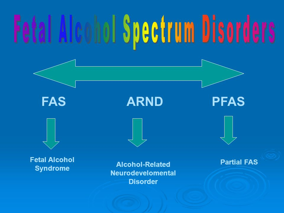 FASARNDPFAS Fetal Alcohol Syndrome Alcohol-Related Neurodevelomental Disorder Partial FAS