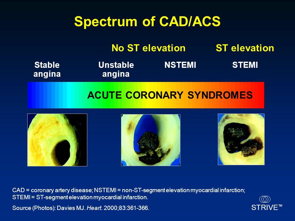 STRIVE TM No ST elevationST elevation Unstable angina NSTEMISTEMI Spectrum of CAD/ACS Stable angina Source (Photos): Davies MJ. Heart. 2000;83:361-366
