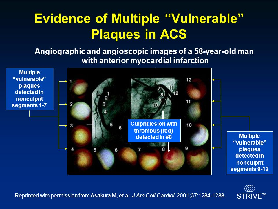 """STRIVE TM Angiographic and angioscopic images of a 58-year-old man with anterior myocardial infarction Multiple """"vulnerable"""" plaques detected in noncu"""