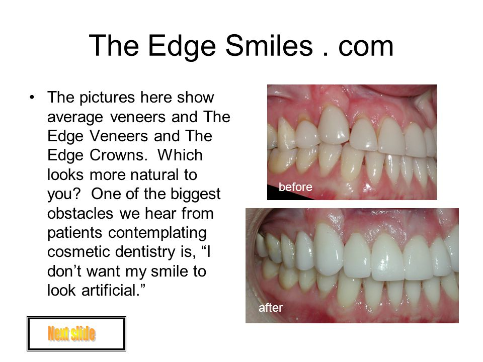 The Edge Smiles. com The pictures here show average veneers and The Edge Veneers and The Edge Crowns. Which looks more natural to you? One of the bigg