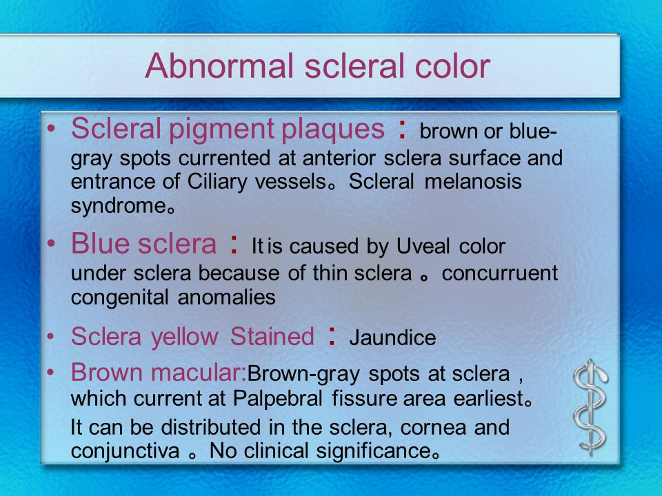 Abnormal scleral color Scleral pigment plaques : brown or blue- gray spots currented at anterior sclera surface and entrance of Ciliary vessels 。 Scleral melanosis syndrome 。 Blue sclera : It is caused by Uveal color under sclera because of thin sclera 。 concurruent congenital anomalies Sclera yellow Stained : Jaundice Brown macular: Brown-gray spots at sclera , which current at Palpebral fissure area earliest 。 It can be distributed in the sclera, cornea and conjunctiva 。 No clinical significance 。